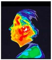 Thermographic Image after 15 mins